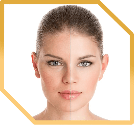 косметология Фото до и после москва