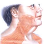 Подтяжка шеи платизмопластика
