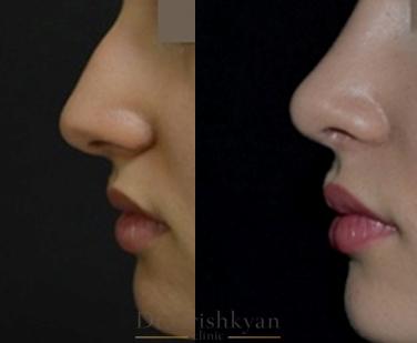 Пластика носа, цена