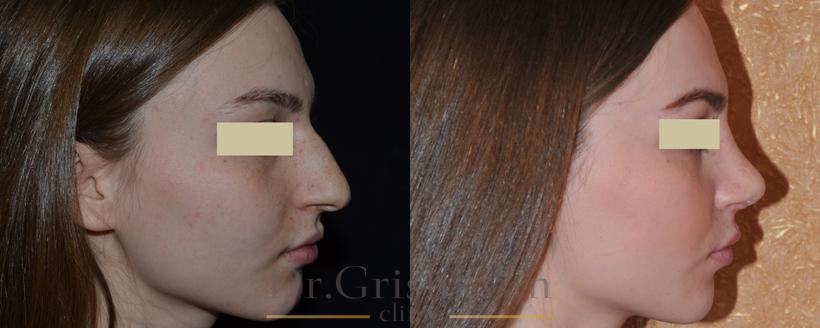 Анастасия ковалева после ринопластики фото