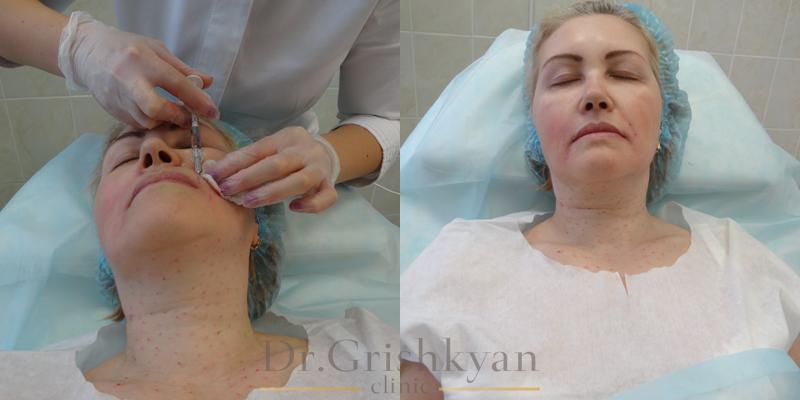 Биоревитализация шеи, фото, цены
