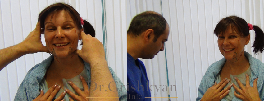 Подтяжка лица, операция в Москве, фото