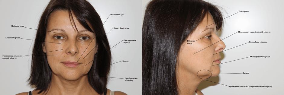Пластика лица, фото до и после