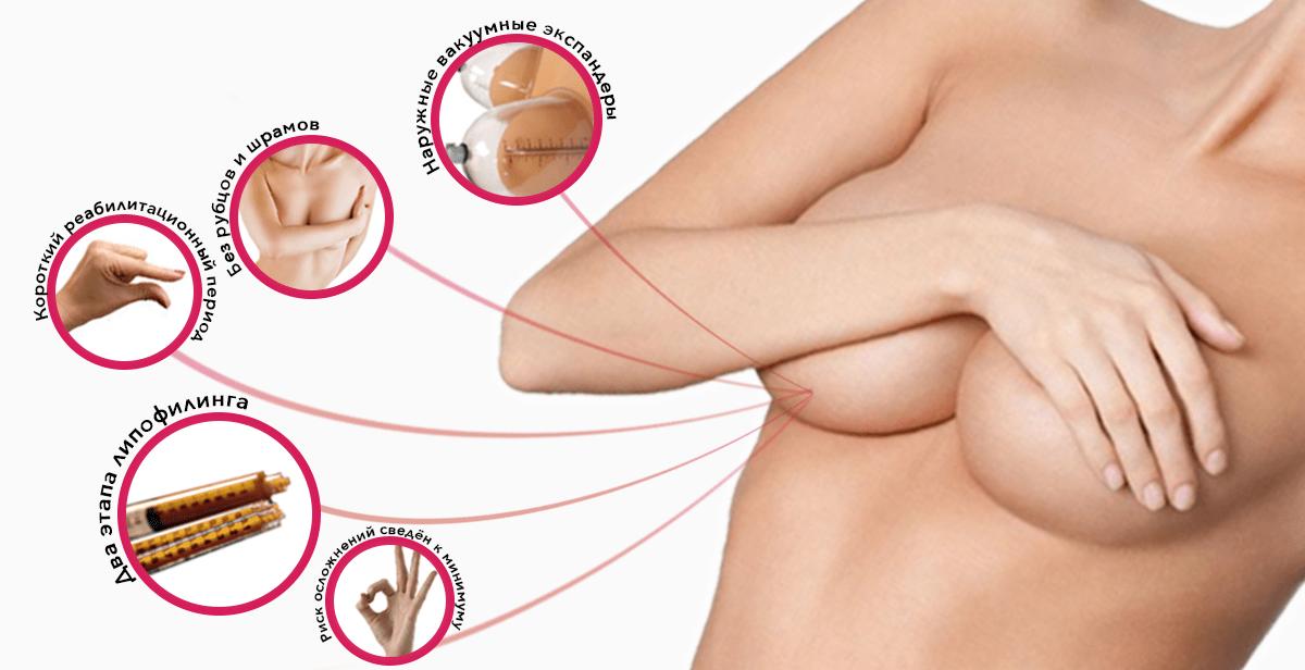 Реконструкция груди после мастектомии