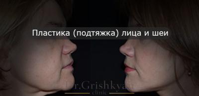пластика лица фото до и после