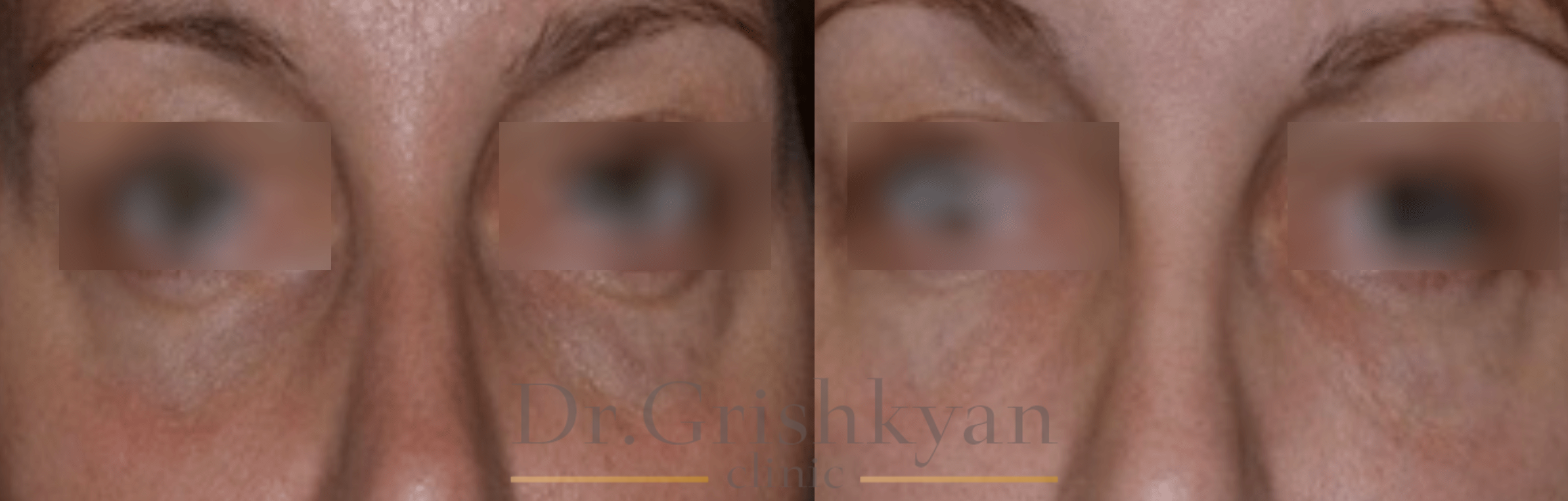осложнения при липофилинге век фото