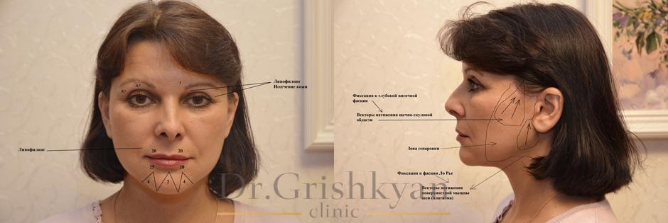 Схема подтяжки лица, фото до и после