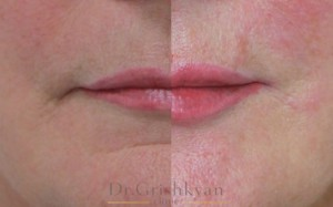 косметология губы 10