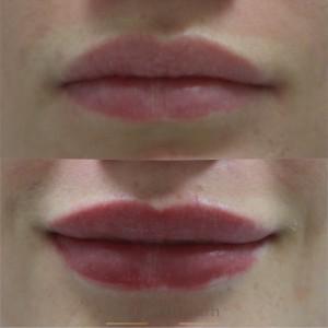 косметология губы 2