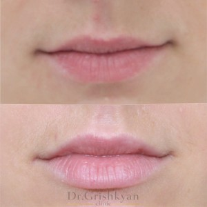 косметология губы 8