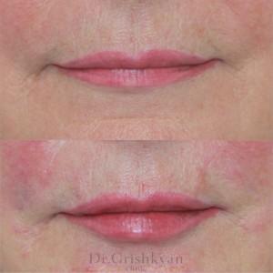 косметология губы 3