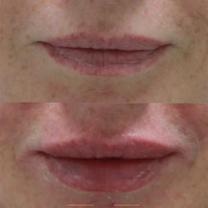 косметология губы 4