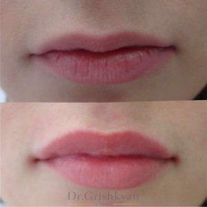 косметология губы 6