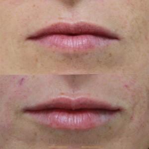 косметология губы 7