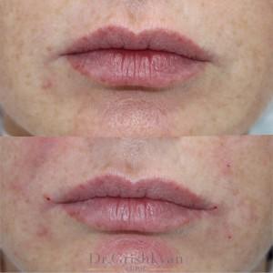 косметология уголки губ