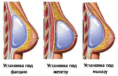 Маммопластика увеличение груди