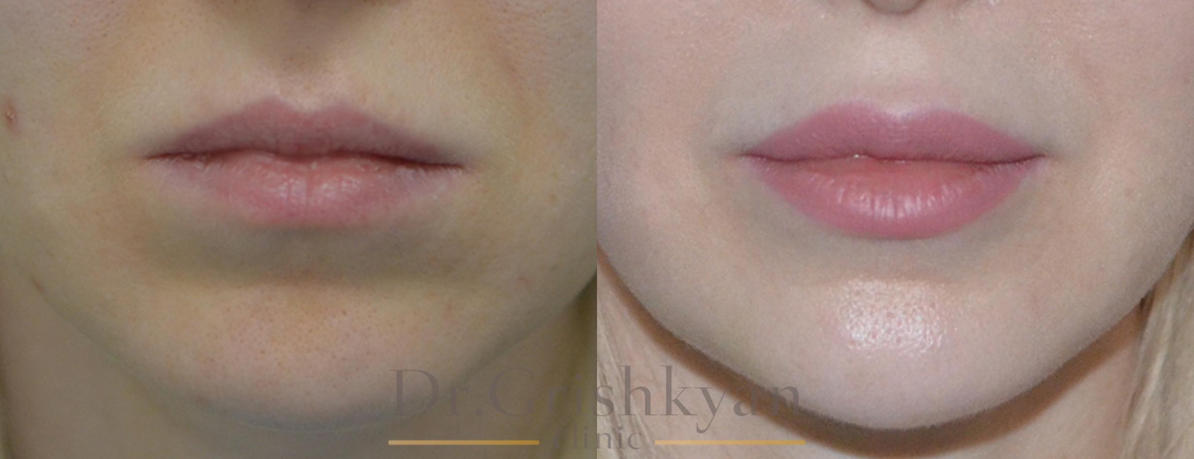 Липофилинг губ в москве